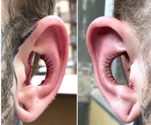Cortar las orejas puede ser la próxima tendencia de modificación?